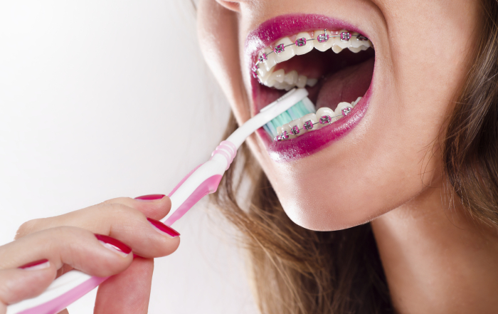 Young woman with braces brushing teeth
